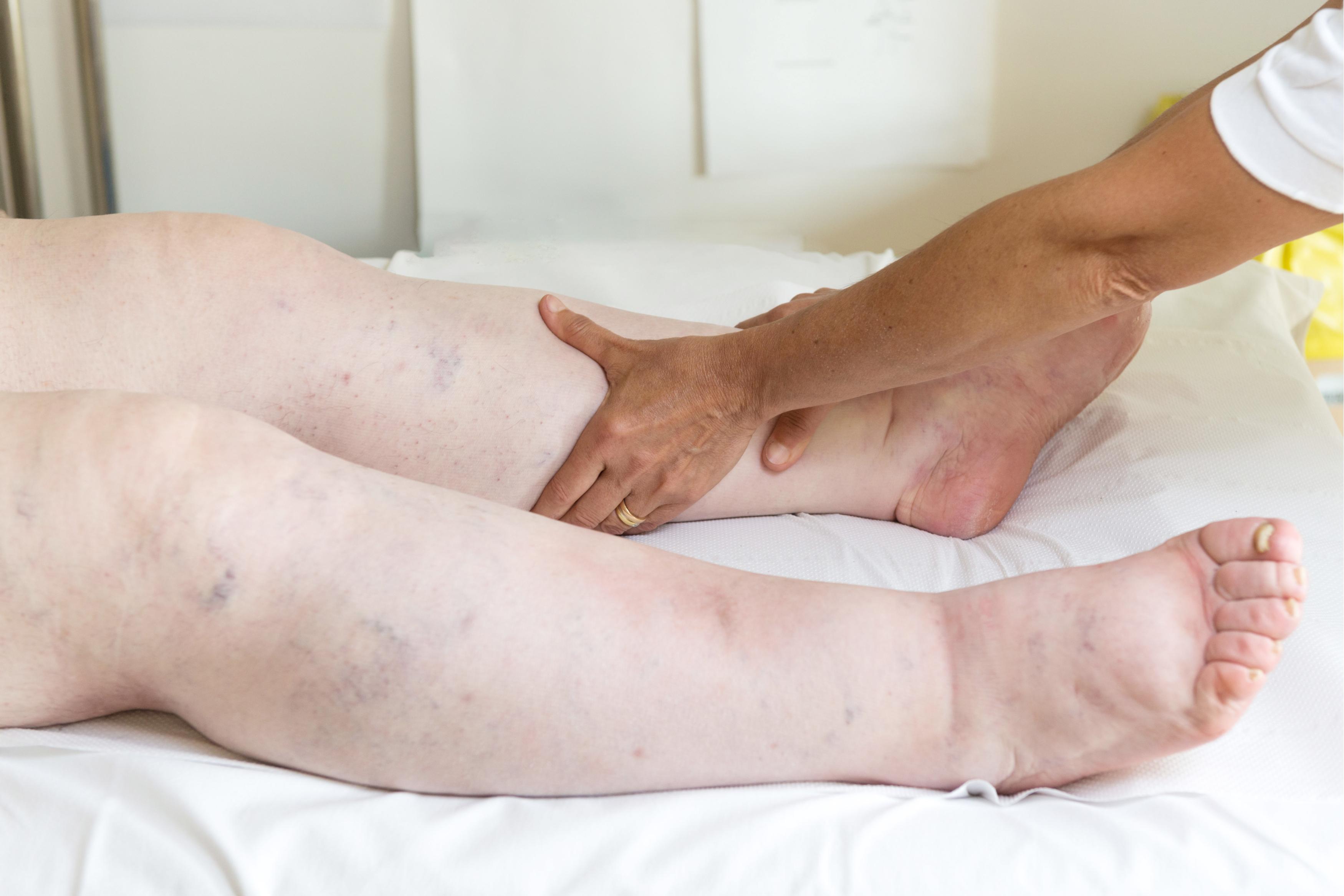 dureri articulare dimineața se remarcă cu ce să faci dureri severe de genunchi