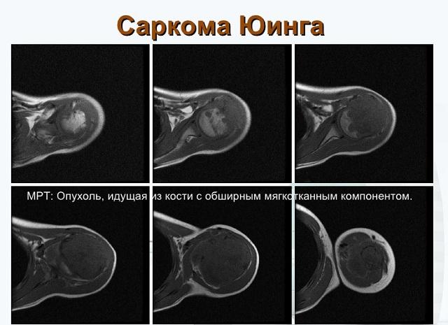 tratamentul sarcomului de șold