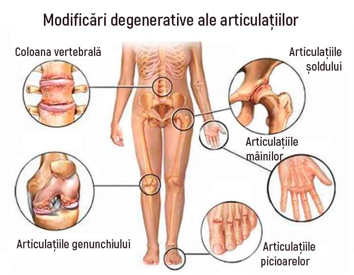 artroza articulațiilor m 16)