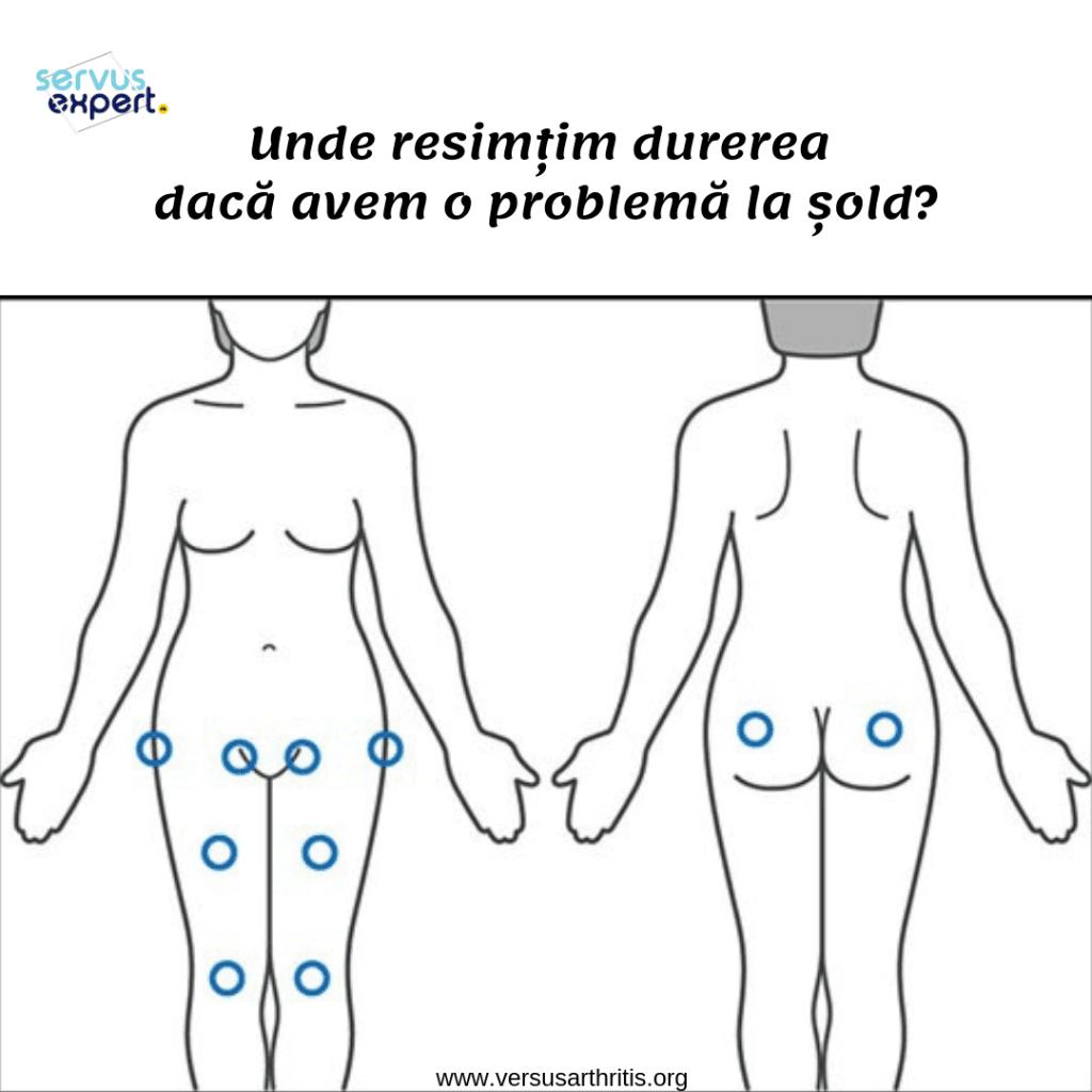 boli de șold și genunchi)