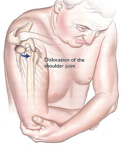 perioada de tratament pentru luxațiile articulației umărului