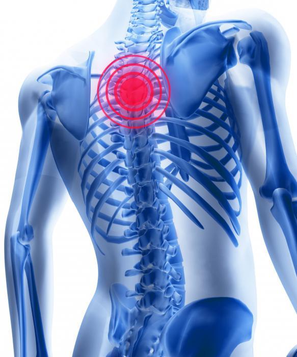 simptome de osteochondroză toracică și medicamente de tratament)