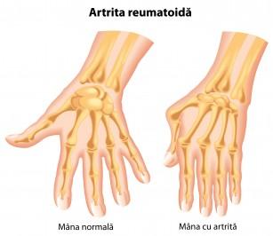 lichid în articulația degetului după rănire)