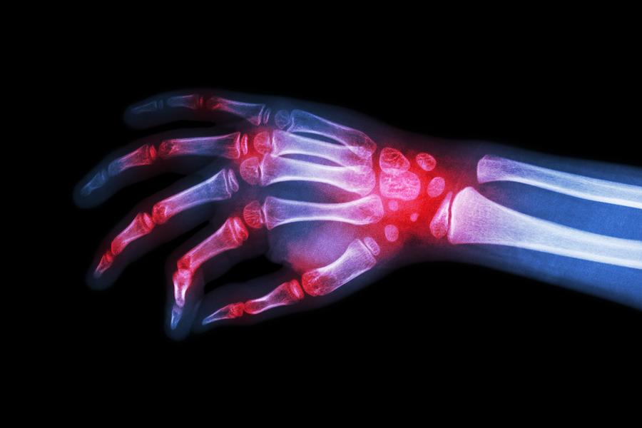 Boală articulară din apă. Cum să restaurați articulațiile genunchiului