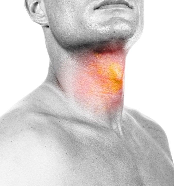 dureri musculare la nivelul gâtului)
