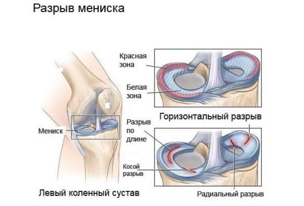 Лечение левого коленного сустава. Неопреновый фиксирующий бандаж колена