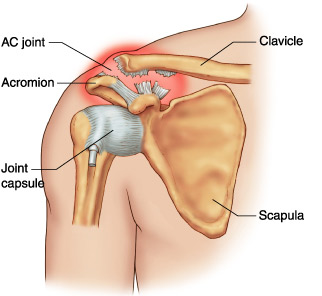 tratament fals cu clavicula articulară