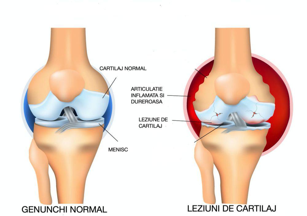 unde să tratezi leziunile articulare