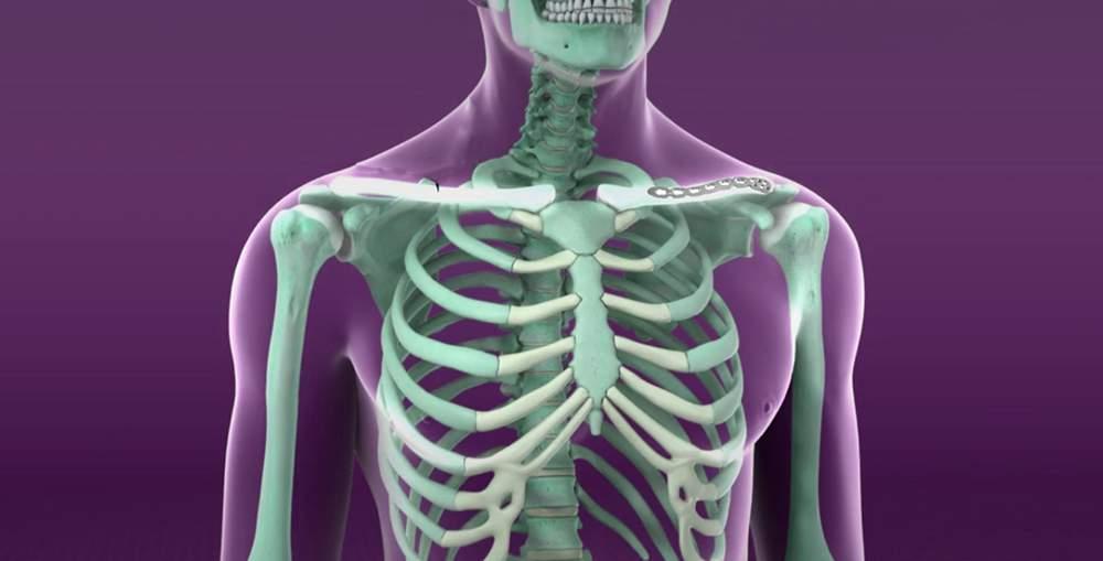 dureri de umăr după fractura de claviculă