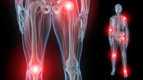 dureri articulare dureri în)
