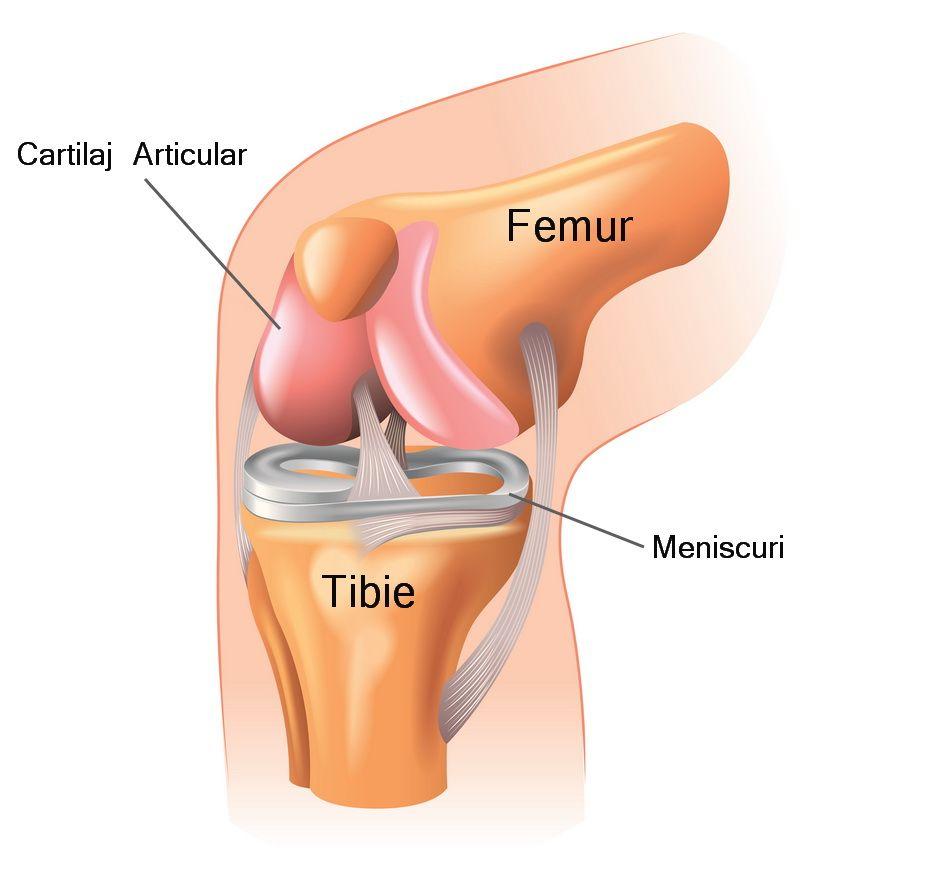 înlocuirea durerii articulațiilor genunchiului)