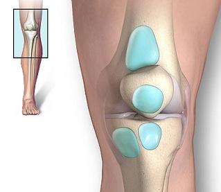 durere și umflare a genunchiului)