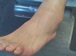 Entorsa de glezna – ghid complet al pacientului
