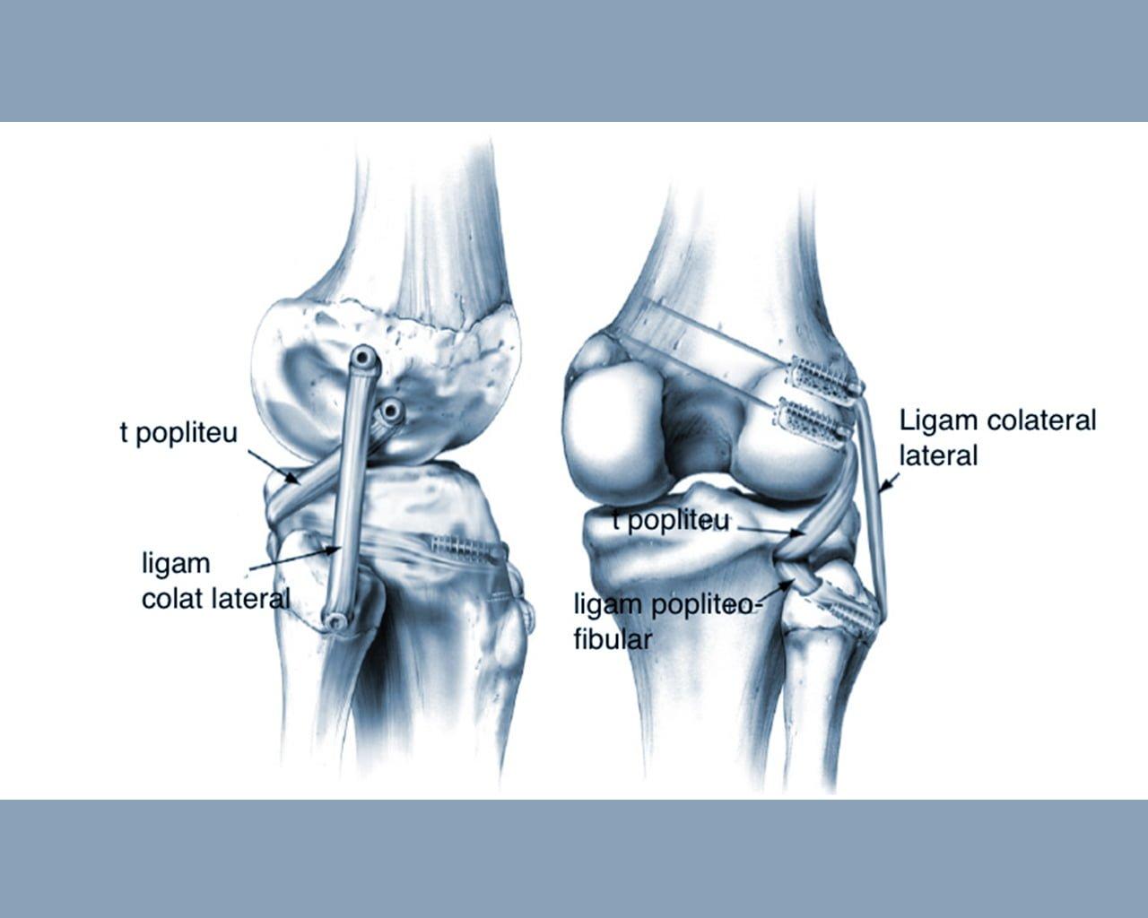 Leziunile ligamentului colateral extern (LCL)