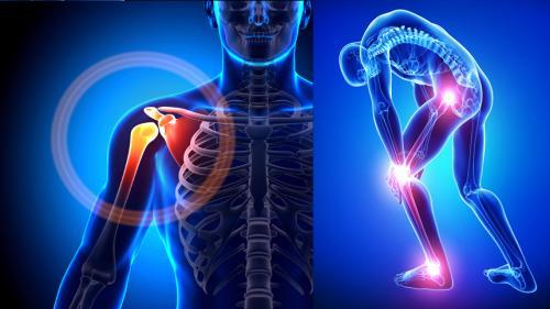 medicii sfaturi pentru tratamentul artrozei)