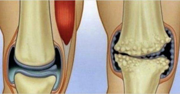 umflături și dureri articulare