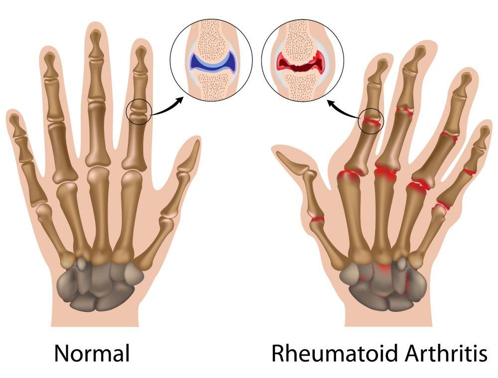distrugerea articulației cu artrita toate articulațiile doare și se fisură