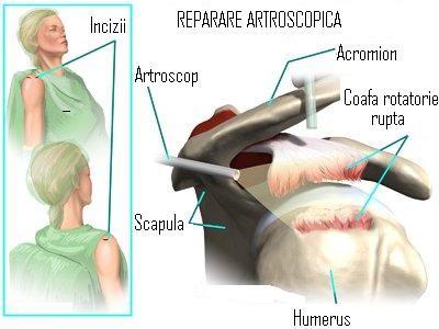 fisură în articulația umărului în timpul tratamentului toamna)