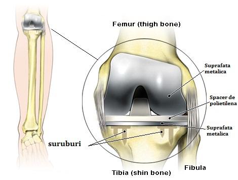 gonartroza 1 Tratamentul articulației genunchiului cu 2 grade)