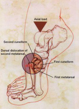Artrita lisfranc umflarea durerii picioarelor în articulații