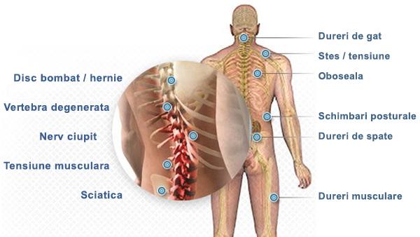 medicamente pentru ciupirea nervului umăr)