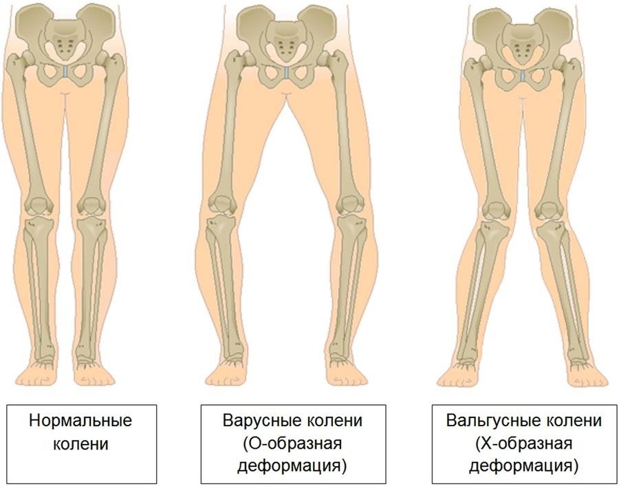 Durerea de genunchi: afectiuni si metode de tratament, Tratamentul genunchiului hallux valgus