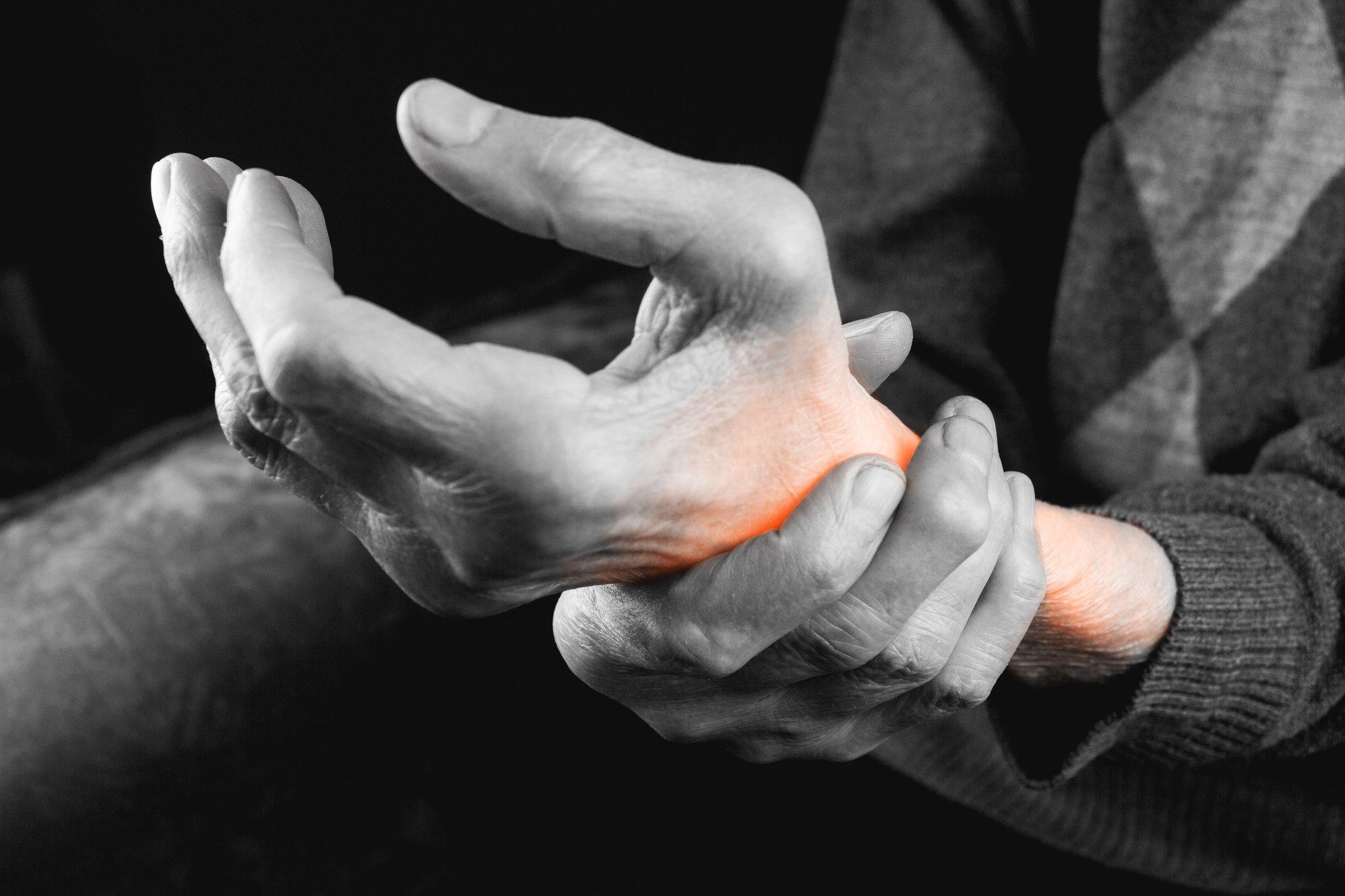 cât de rănit mâinile cu artrita)