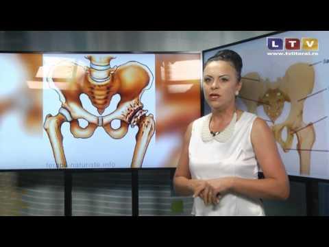 tratamentul artrozei balashikha