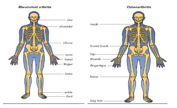 prevalența bolii articulare)