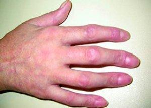 Boala mixta de tesut conjunctiv - BMTC