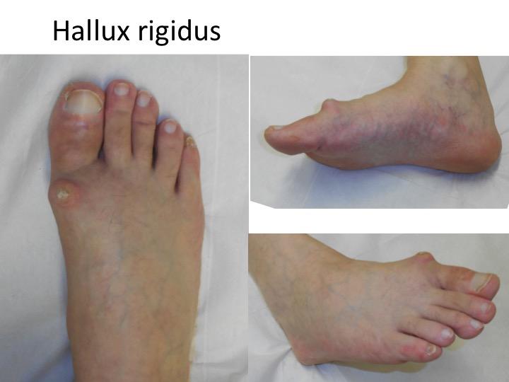 tratamentul chirurgical al artrozei piciorului)