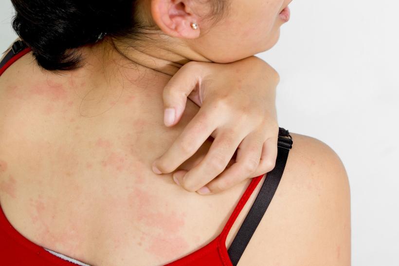Psoriazisul, a 5-a cea mai importantă boală cronică netransmisibilă