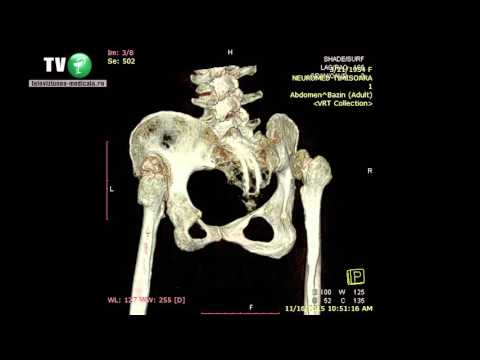osteochondroza exacerbării articulației șoldului)