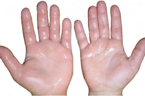 cum să amelioreze umflarea în mâinile artritei