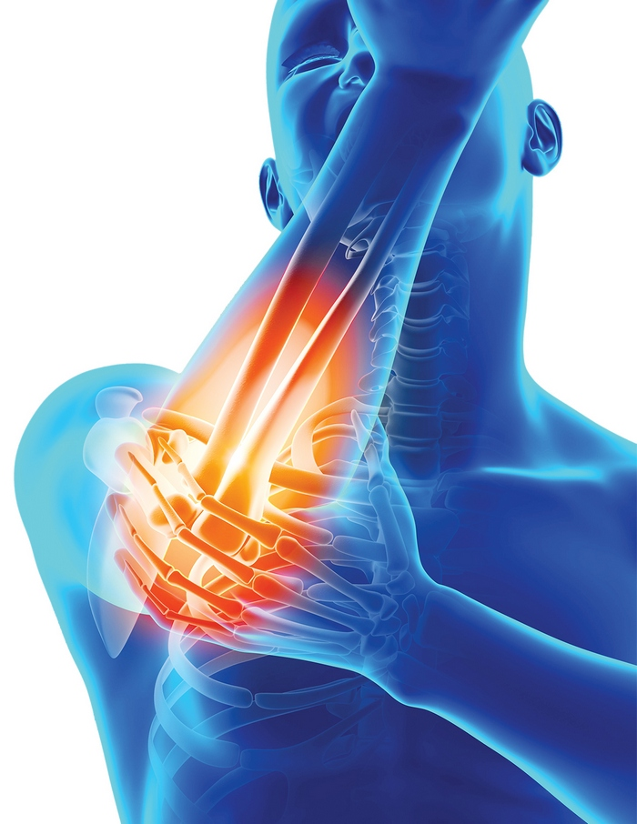 simptome de inflamație osoasă și articulară