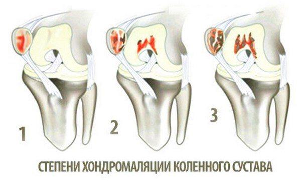 deteriorarea articulației genunchiului de 1 grad