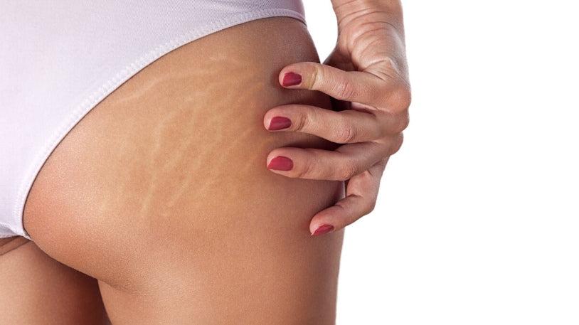 remedii pentru vergeturi articulare durere în toate articulațiile ce este