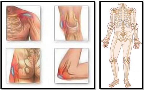 cum să opriți artroza tuturor articulațiilor)