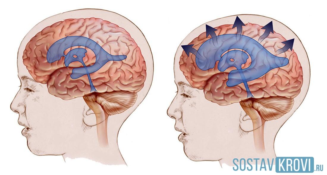 agenți care îmbunătățesc circulația cerebrală în osteochondroză inflamat articulația în umăr pentru a ameliora durerea