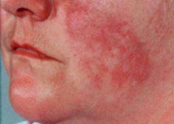 boli de țesut conjunctiv difuz lupus eritematos sistemic