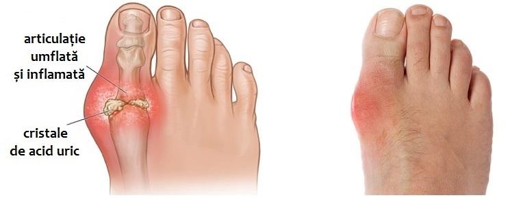 simptomele bolii articulare a piciorului