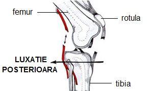 luxația articulației genunchiului cum să se trateze)