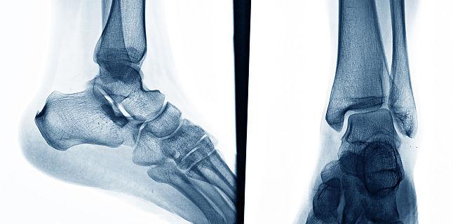 sindroame radiologice principale ale bolilor osoase și articulare)