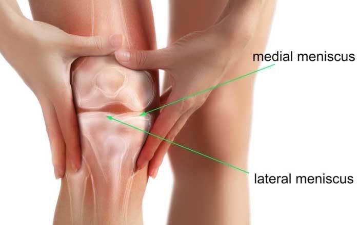 menisc rupt al tratamentului articulației genunchiului