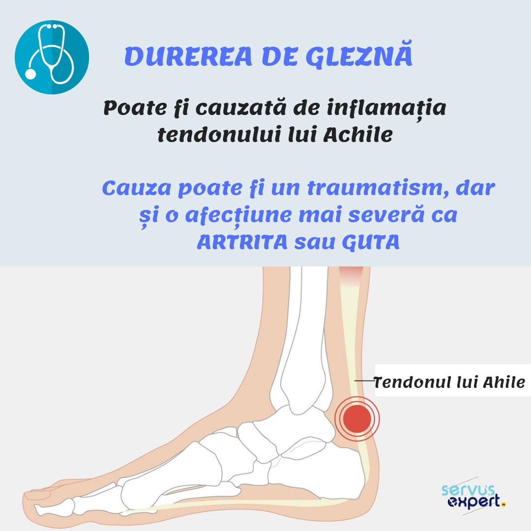 simptome ale inflamației articulațiilor gleznei)