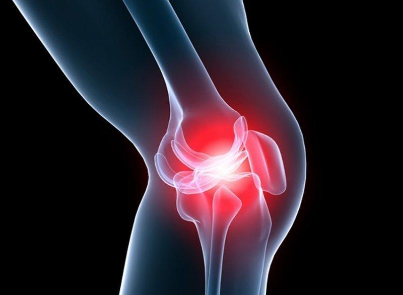 Cum să puneți cutiile pe articulația genunchiului