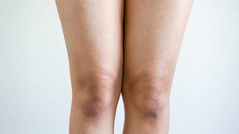 tratamentul genunchiului de cartofi