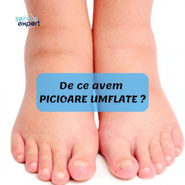 de ce articulațiile umflate pe picioare