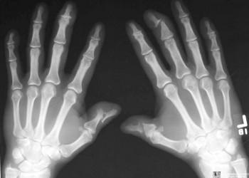 artrita arteriala articulara