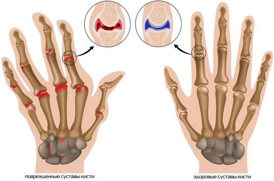 как вылечить остеоартроз лучезапястного сустава tratament avansat al artritei genunchiului